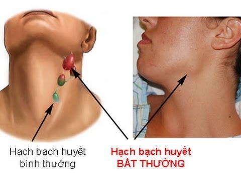 trieu-chung-ung-thu-amidan-3