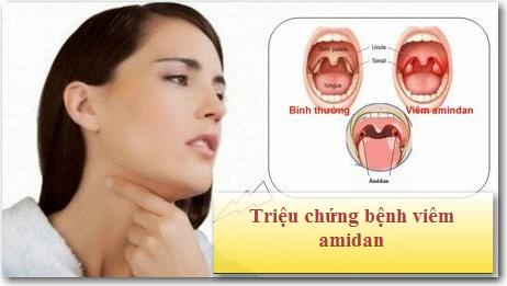 trieu-chung-viem-amidan-1
