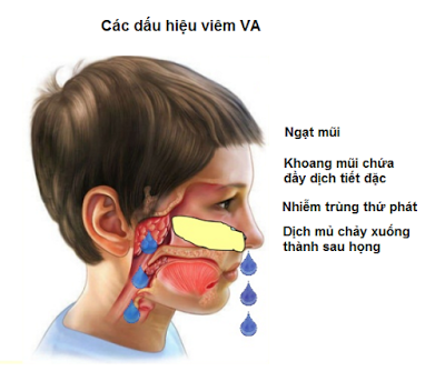 phuong-phap-dieu-tri-viem-va-1