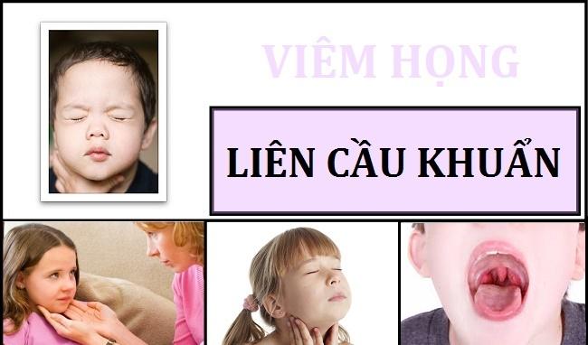 viem-hong-lien-cau-khuan-tan-huyet-nhom-la-gi-2