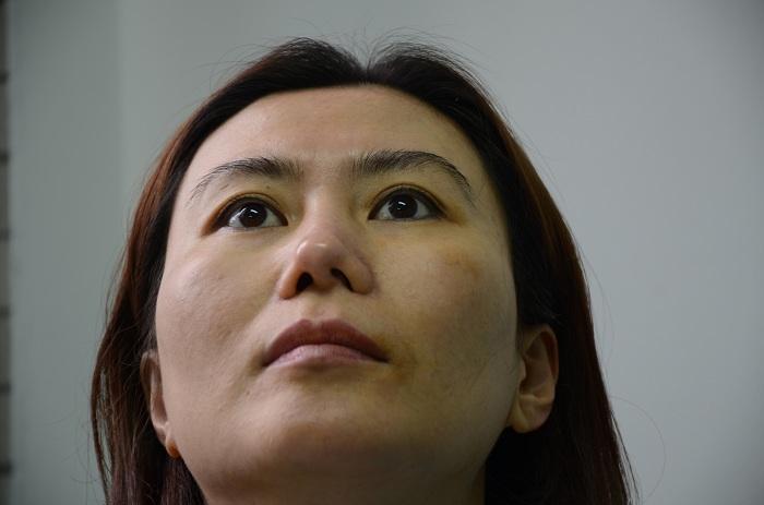 Lệch - vẹo vách ngăn mũi có nên phẫu thuật ?