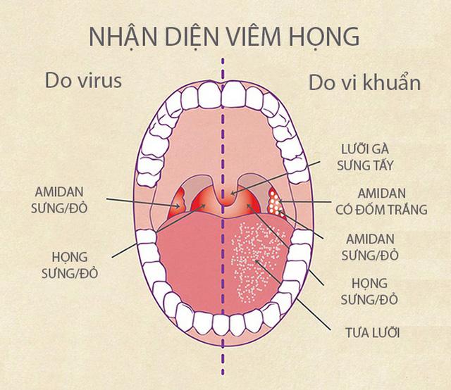 Hình ảnh mô phỏng dấu hiệu viêm họng
